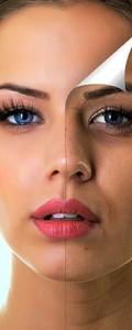 IPL- Behandlung bei Pigmentflecken, Altersflecken, Couperose und Akne